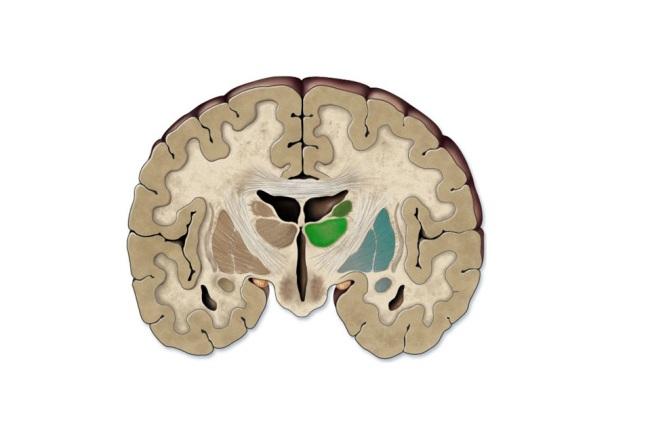 brain coronal.jpg