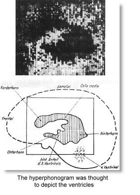 hyperphonogram3.jpg