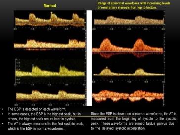 Various waveforms normal and tardus parvus source Cindy Owen RT, RDMS, RVT FSDMS