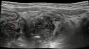Complex collection near transverse appendix