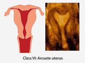 class-vi