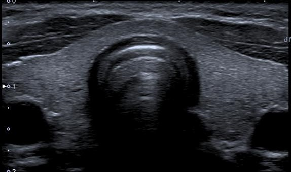 thyroid_normal_ultrasound_from_toshiba_pr