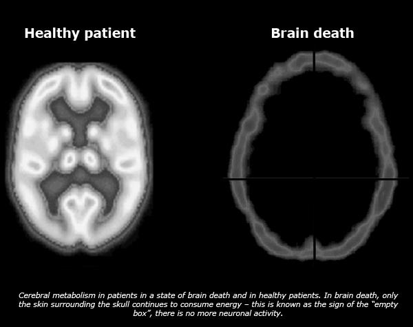 brain_death