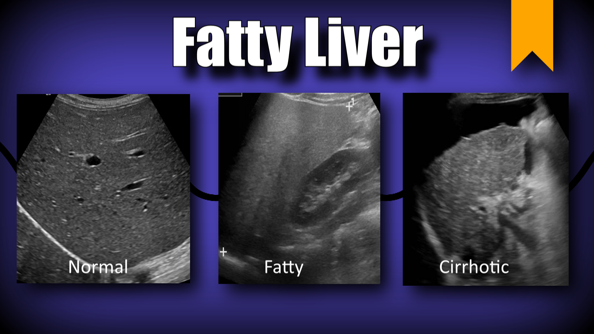 What is diffuse liver change
