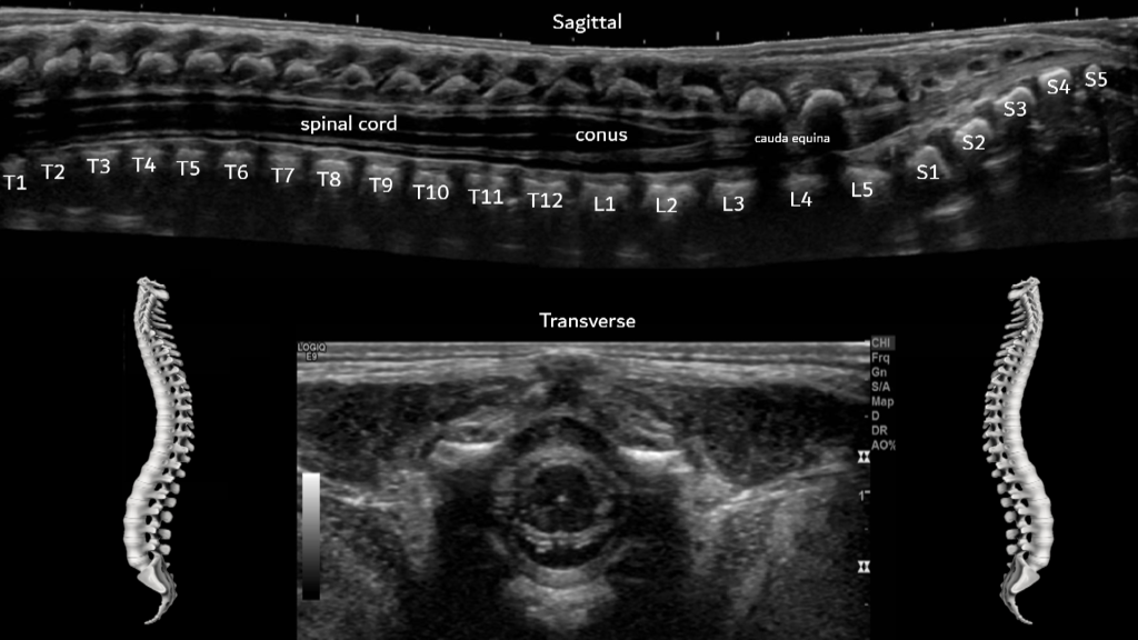 Neonatal Infant Spine Sonographic Tendencies The external surface of the dura was explored bilaterally at the sacral level in search for a filum terminale lipomas: neonatal infant spine sonographic